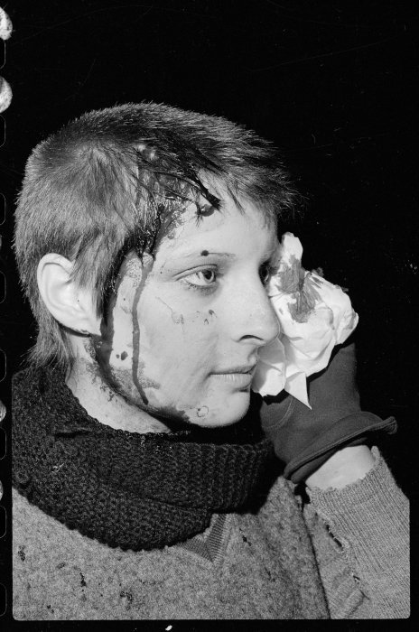 Karen Brough, injured during an anti Springbok rugby tour demonstration in Wellington - Photograph taken by Ian Mackley. Dominion post (Newspaper) : Photographic negatives and prints of the Evening Post and Dominion newspapers. Ref: EP/1981/2623/21-F. Alexander Turnbull Library, Wellington, New Zealand. http://natlib.govt.nz/records/22860506